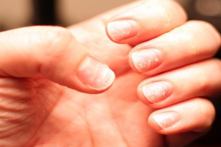 Top 5 Home Remedies For Peeling Fingernails | Nails | Nails after ...