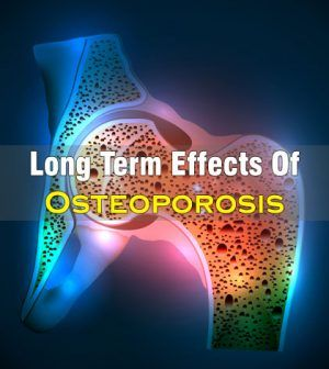 32+ Long term effects of osteoporosis info
