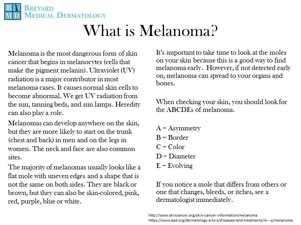 The deadliest form of skin Cancer...#Melanoma #Dermatology ...