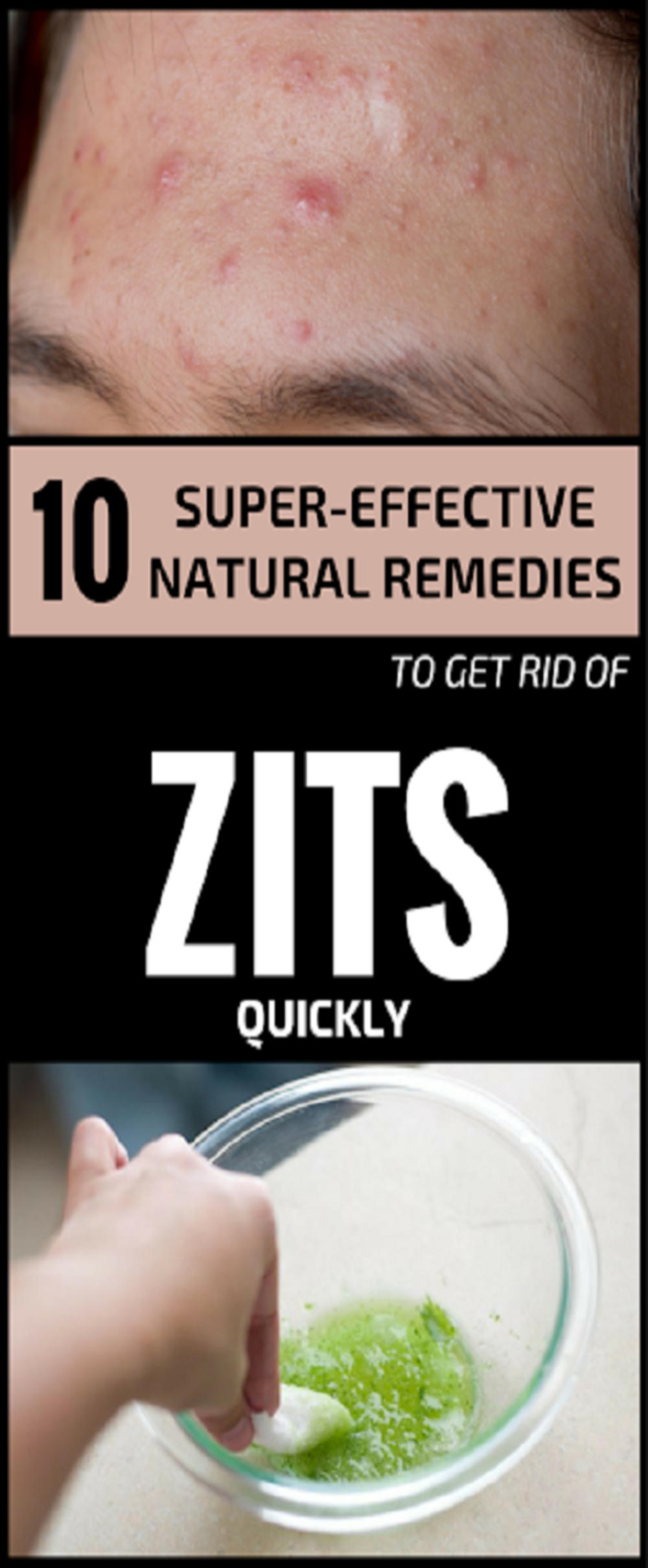 rid of zits overnight