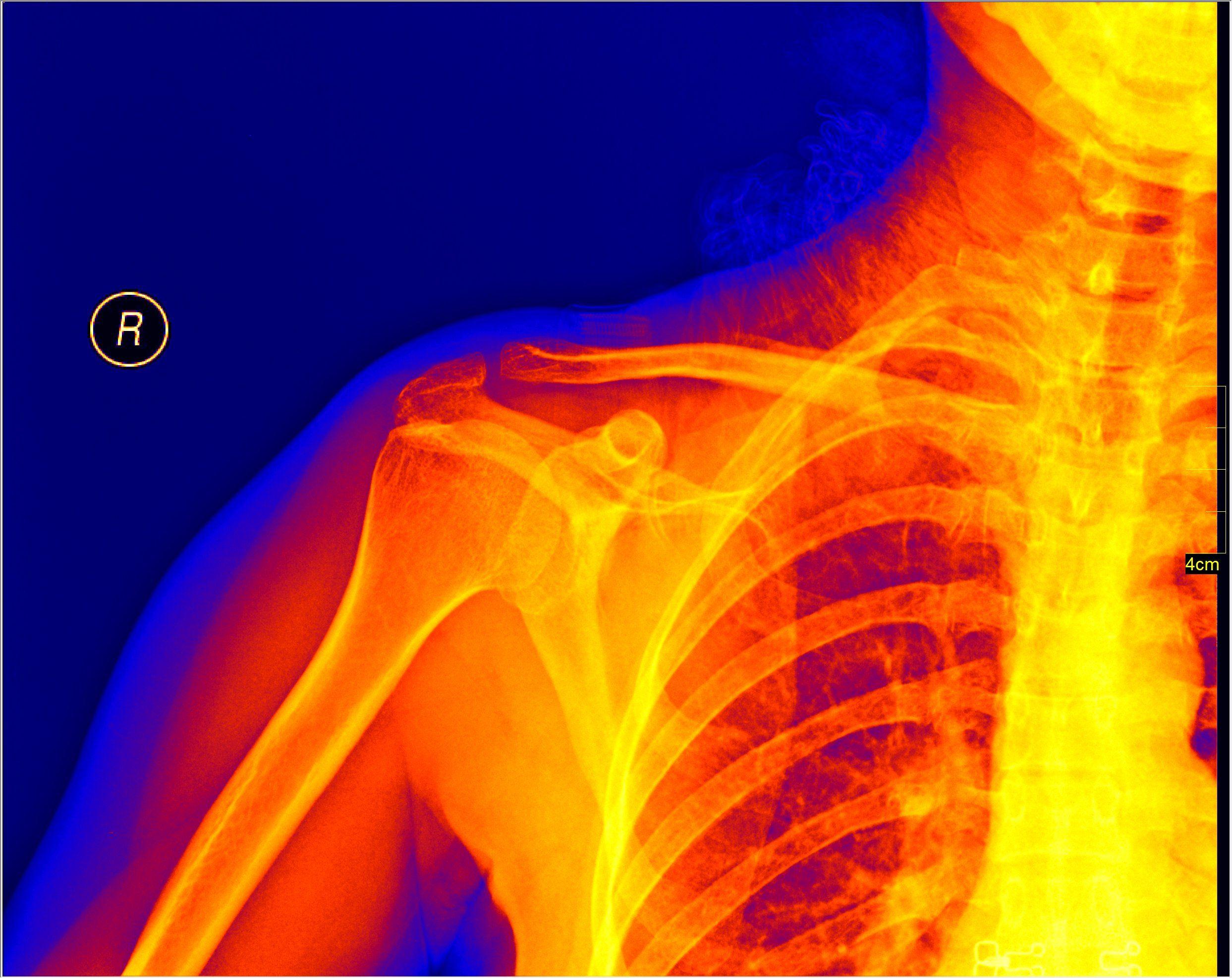Resultado de imagem para x ray colors | Skeletal system ...
