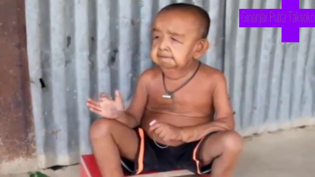 Miris Bocah 4 Tahun Ini Berwajah Seperti Kakek Kakek Video