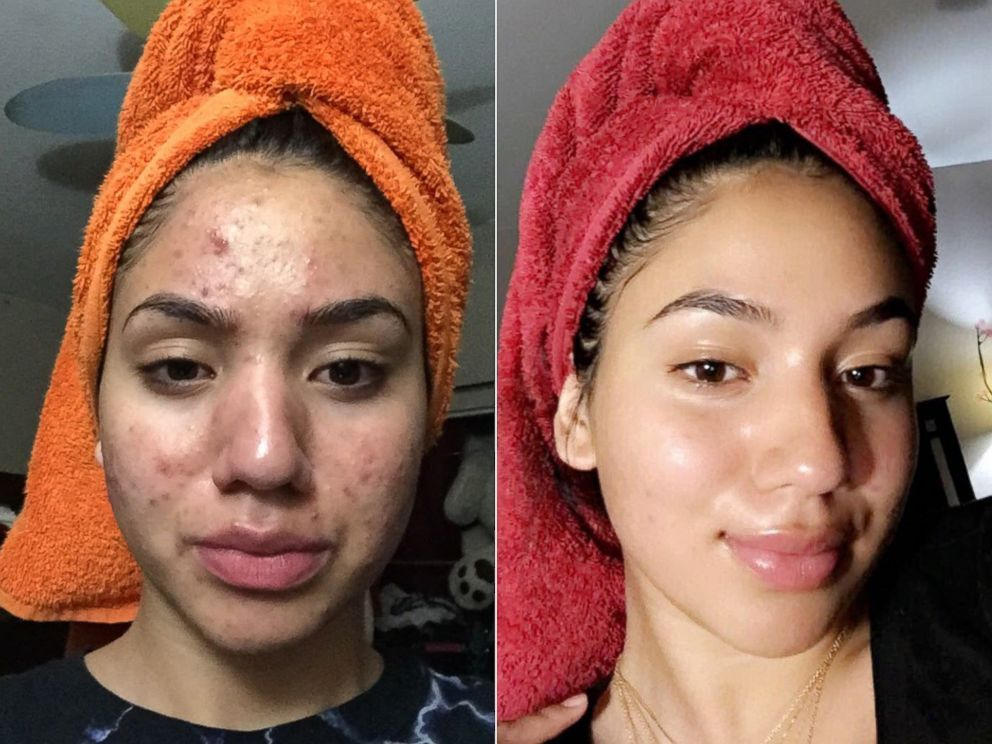 Teen who suffered severe acne shares miracle routine which cleared her skin – using just four budget products, including Dr. Bronner's Castile Soap. #skin