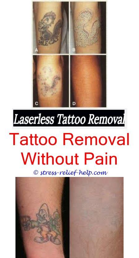 Tattoo Removal Tattoo Removal Eyebrow Tattoo Removal And Tattoo