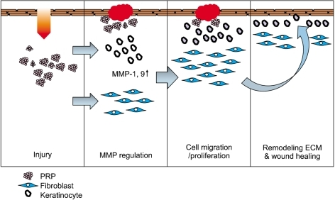 a schematic diagram of the mechanisms by which prp promotes wound Surgical Wound Healing a schematic diagram of the mechanisms by which prp promotes wound healing at sites of injury