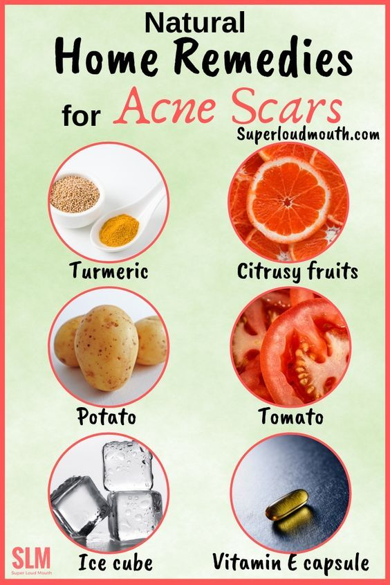 30 Natural Home Remedies to heal Acne Scars overnight is part of Home remedies for acne, Acne scars, Remove acne scars overnight, Natural home remedies, Remove acne, Natural acne remedies - These are some of the effective home remedies for acne scars and to maintain a healthy glow  Check the best home remedies here that suit your skin type