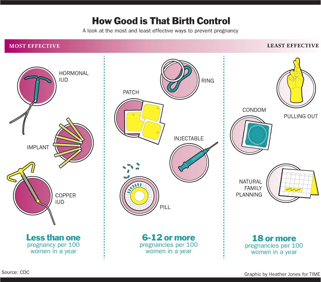 The Iud The Best Form Of Birth Control Is The One No One -5320