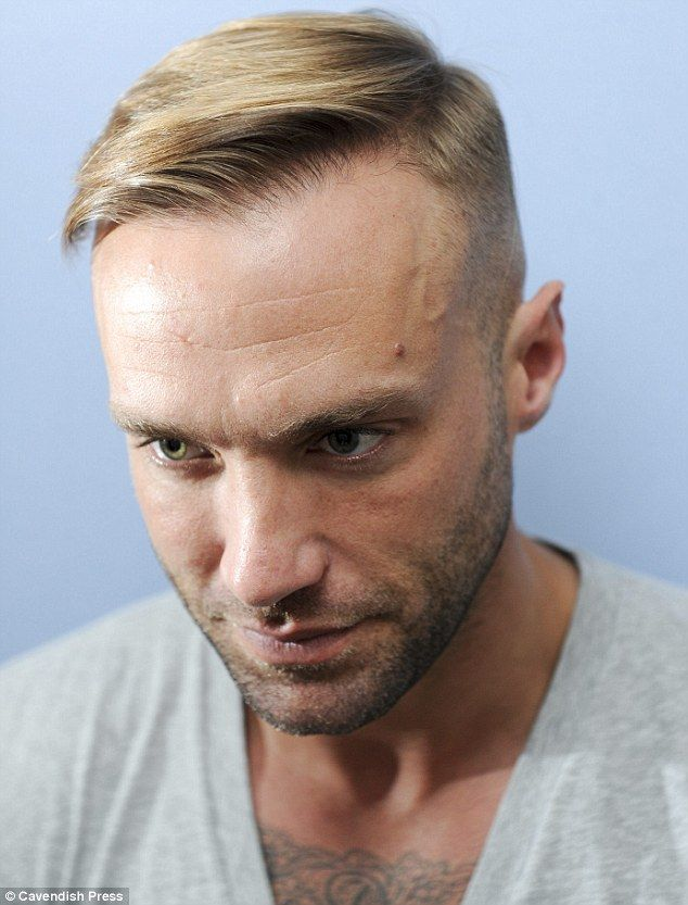 Calum Best Reveals His THIRD Hair Transplant