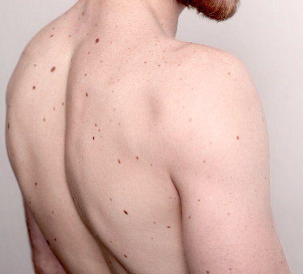 Pin de Cin Rosas en Human Body | Pinterest | Anatomía humana, Piel y ...