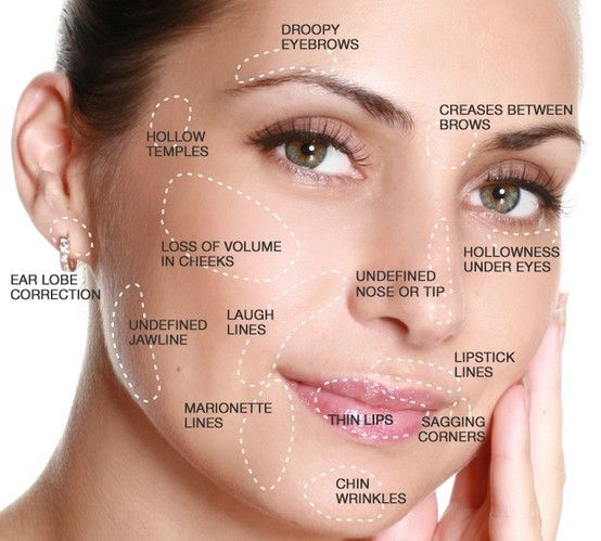 Injectable Fillers like Juvéderm® and Restylane can target these areas on the face. Results last for up to a year or more, depending on the frequency of your treatments and how long you've been treated.