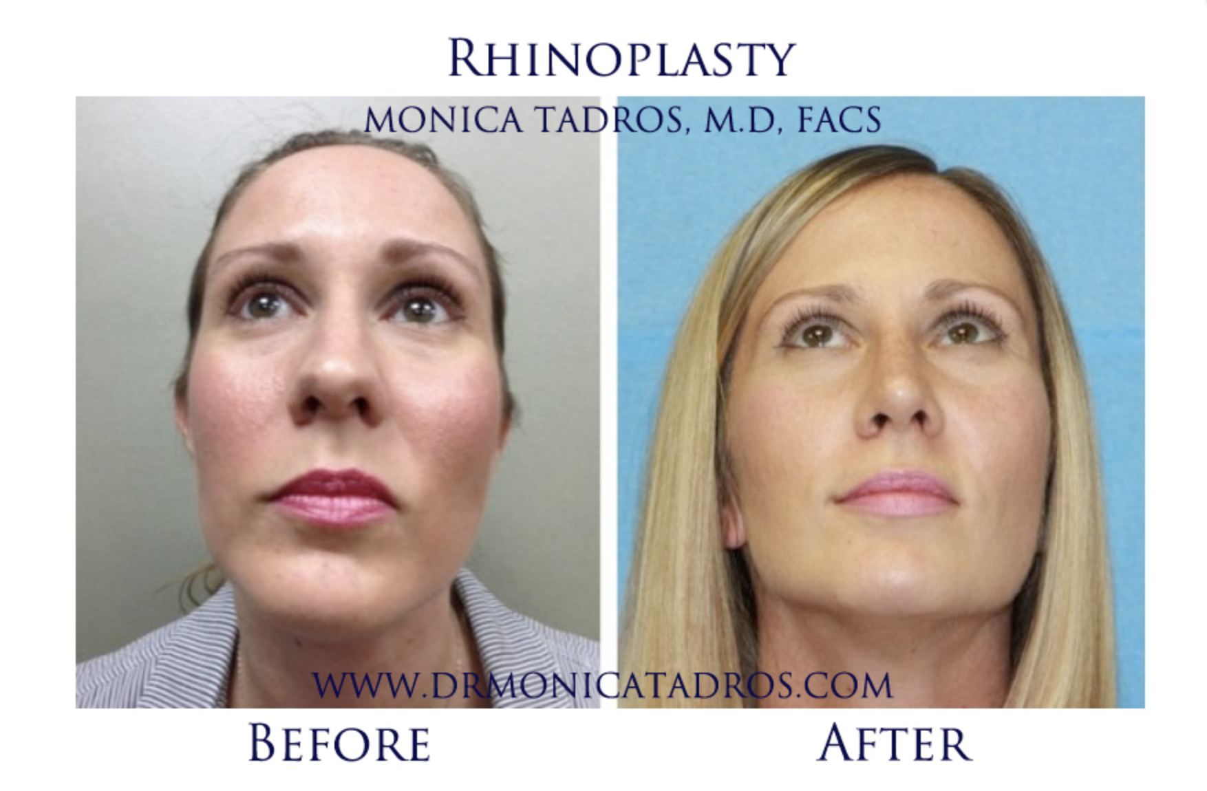 Pin By Dr Monica Tadros On Dr Monica Tadros Facial Plastic Surgery Facial Plastic Plastic Surgery