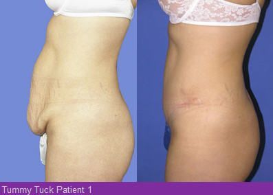 A Tummy Tuck Or Abdominoplasty Is The Contouring Of Abdomen By Removing Excess Loose Skin While Also Tightening Muscle Wall