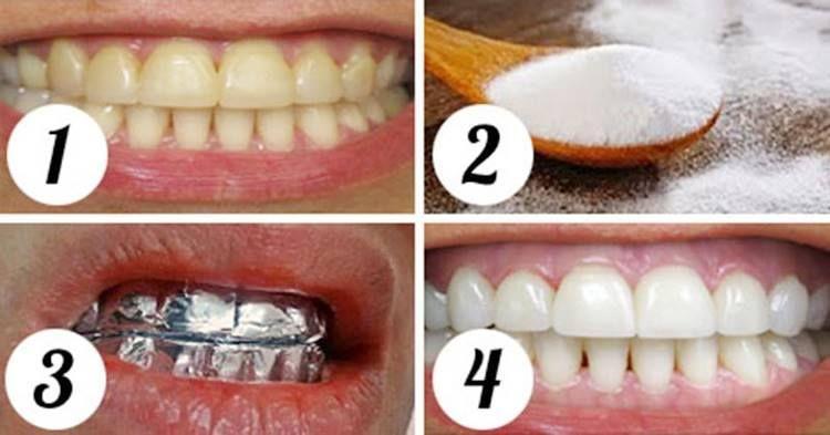 Como Branquear Os Dentes Com Bicarbonato Dentes Branquear