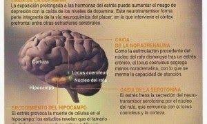 TU SALUD: Efectos de la depresión en el cerebro