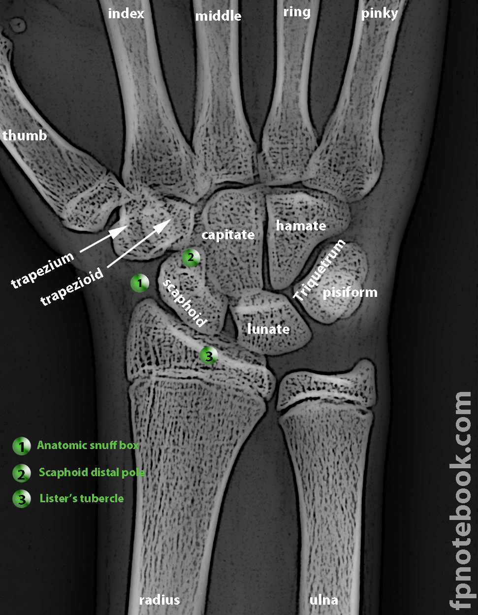 xray+images | OrthoNormalWristXray.png | @@@ robert beverly hale ...