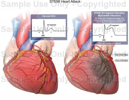 What Is A Stemi Heart Attack Google Search Anatomy And