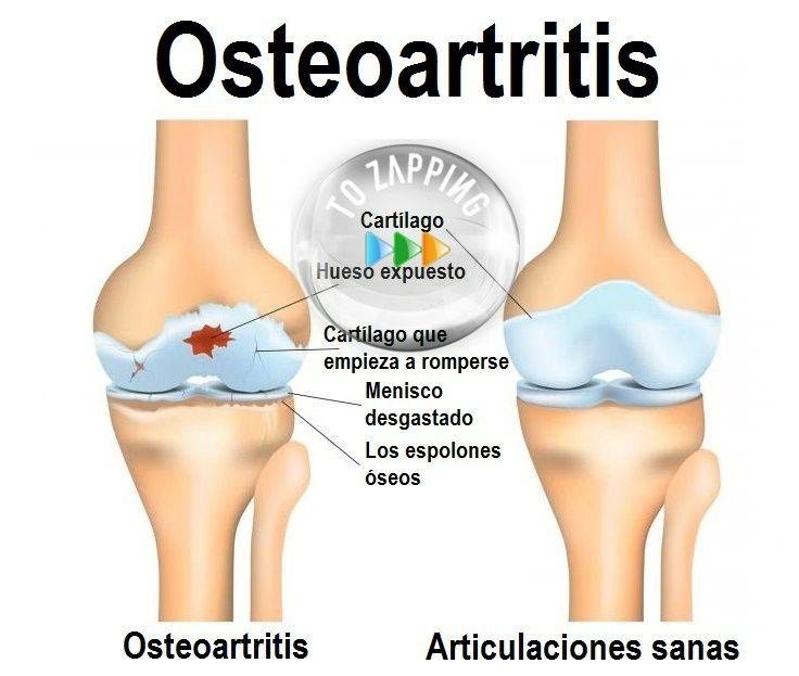 Batido Para Fortalecer Los Ligamentos Y Tendones De La Rodilla Remedios Para Las Rodillas Remedios Para El Dolor De Rodilla Rodillas