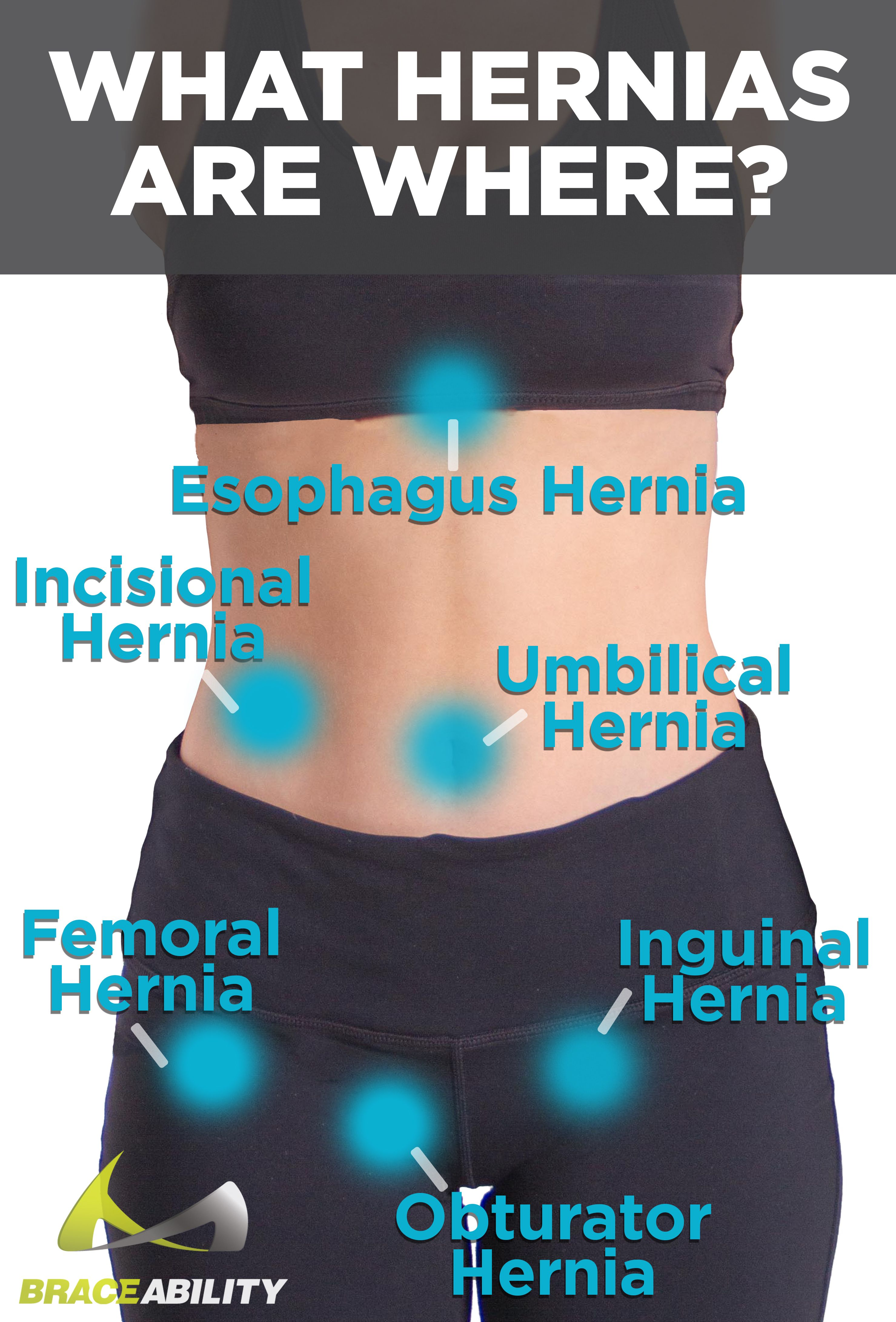 hight resolution of diagnosing what type of a hernia you have is easy based off of its location femoral inguinal and obturator are below your belly button whereas umbilical
