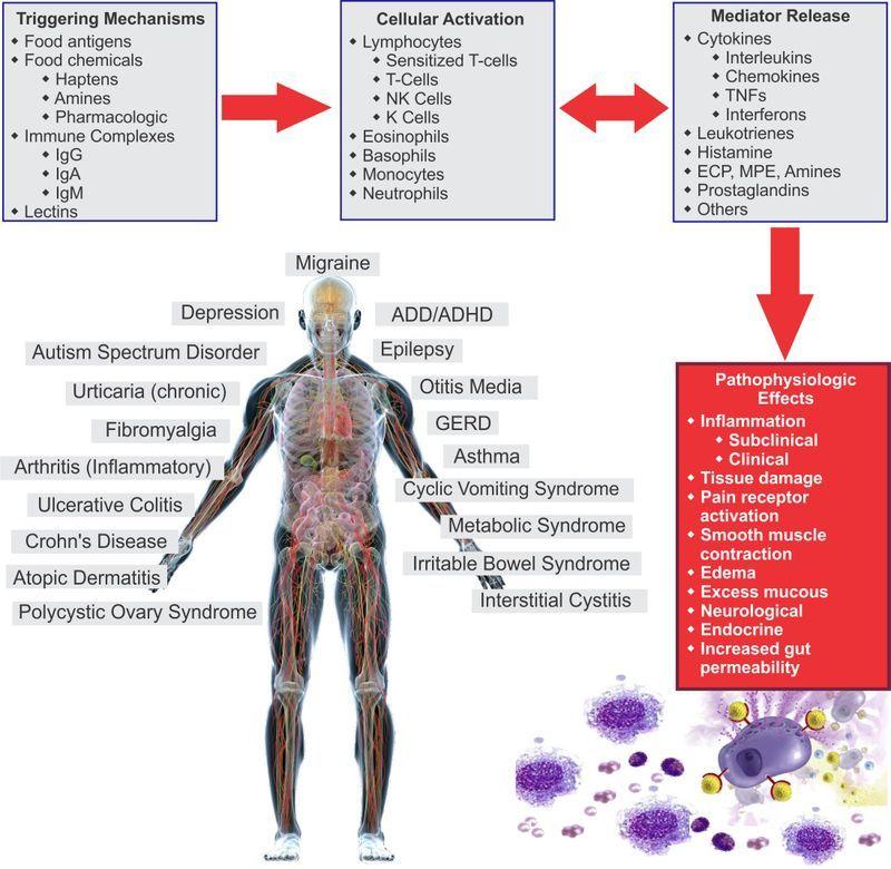 How food sensitivities cause inflammation chart