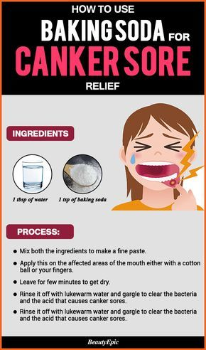 How Can Baking Soda Help Relieve Canker Sores Holistic Health