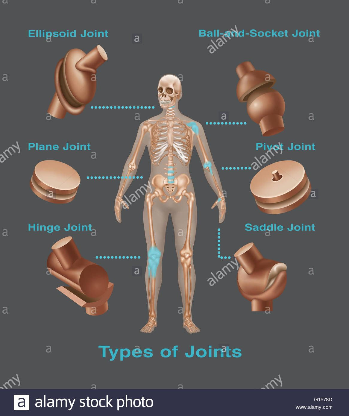 Joint Replacements In The Human Body Types Of Joint