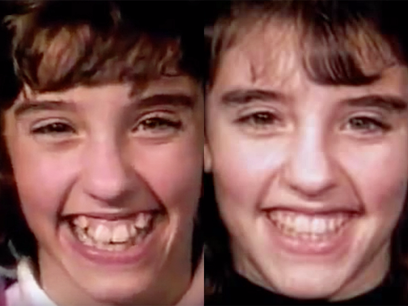 This mesmerizing time lapse shows how braces straighten even