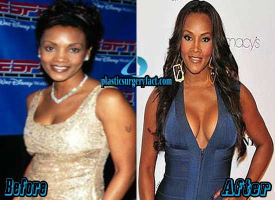 Breast Implants Gone Wrong   Breast Implant Problems ...