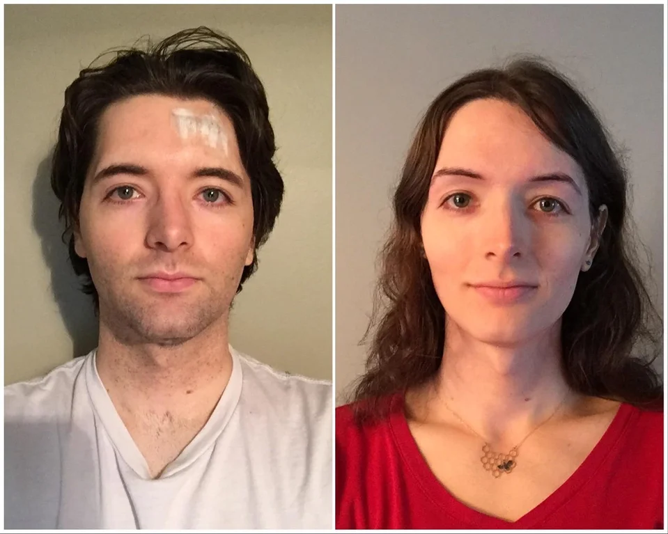 The Role Of Pharmacists In Transgender Therapy