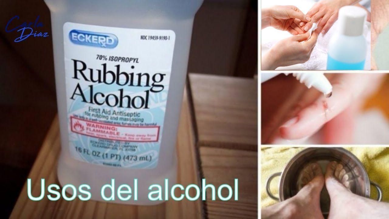 el alcohol sirve para quitar los piojos