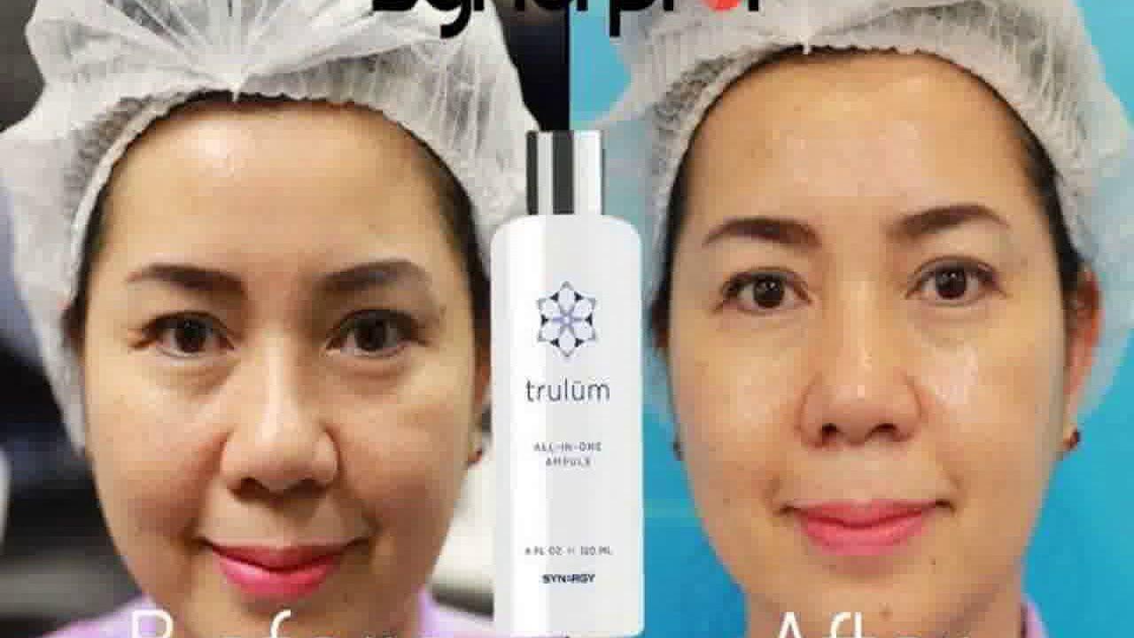 Skincare Menghilangkan Bekas Jerawat Dan Flek Hitam