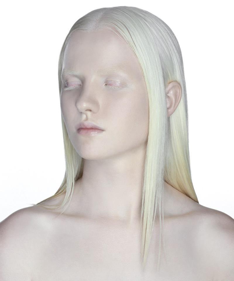 albino lady