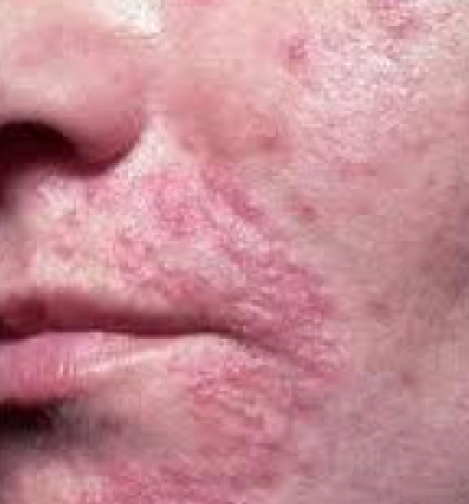 Candida rash on face pictures