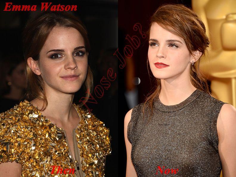 Emma Watson Nose Job Did Emma Watson...