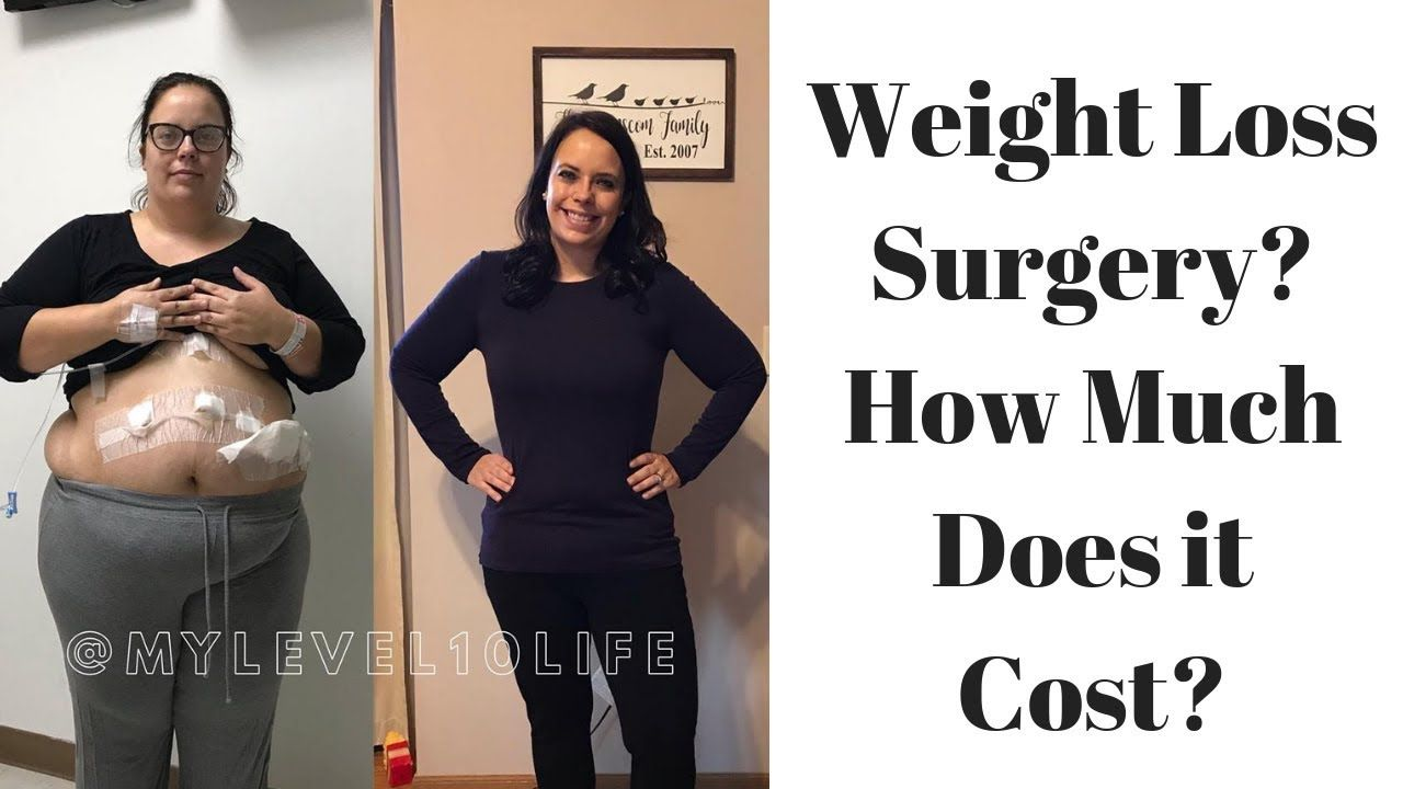 How Much Does Gastric Sleeve Cost Vsg Weightlossinspiration