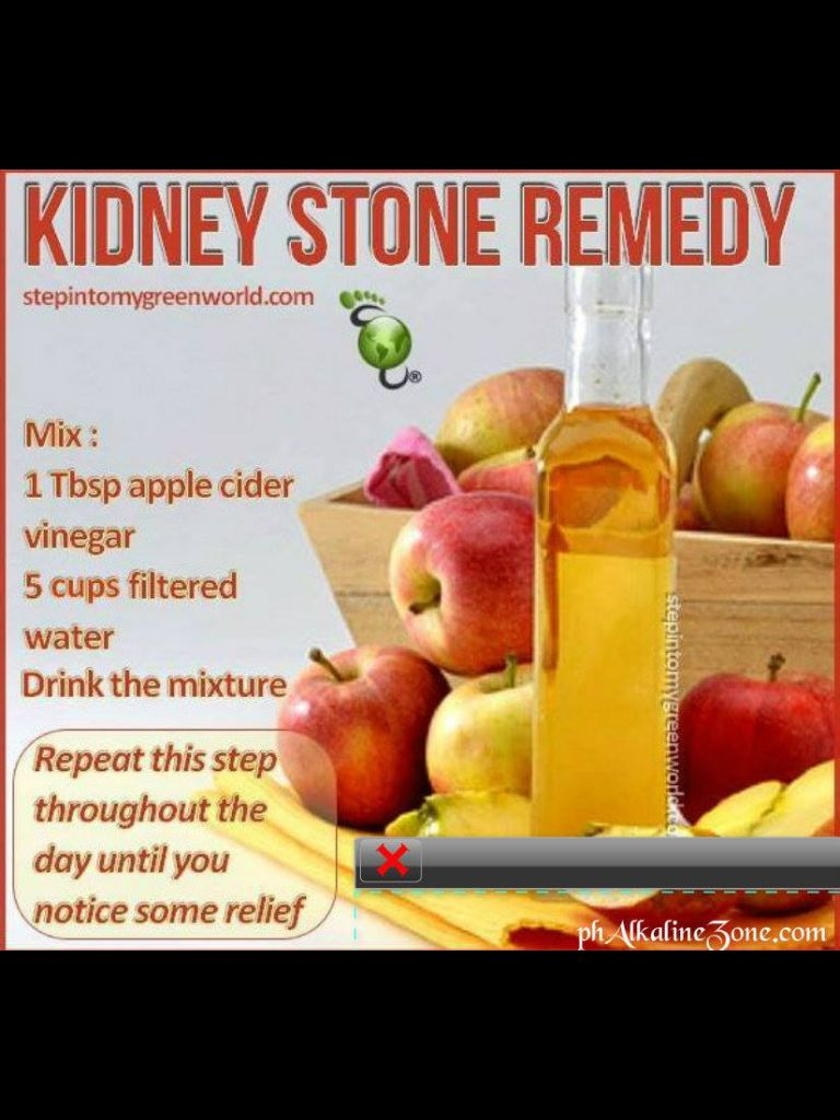 Natural Remedies For Kidney Stone Relief