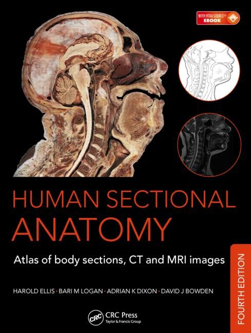 Human Sectional Anatomy : atlas of Body Sections, CT and MRI Images ...