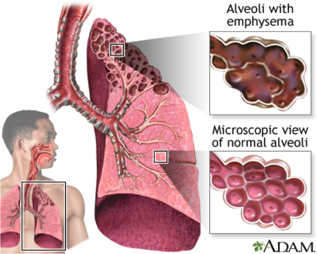 Emphysema Health pictures, Health care, Chronic
