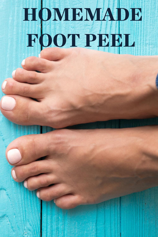 Photo of HOMEMADE FOOT PEEL