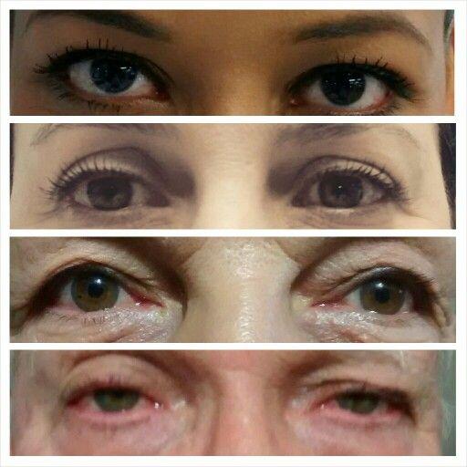 Day 14: Eyes -