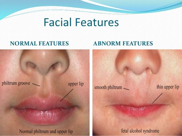 Fetal alcohol syndrome facial pictures