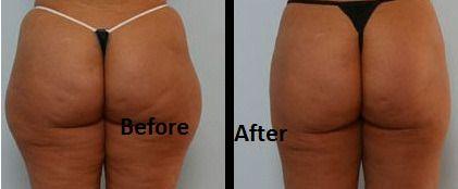 Het veilige en betaalbare alternatief voor liposuctie!  zie www.dermaprofs.nl