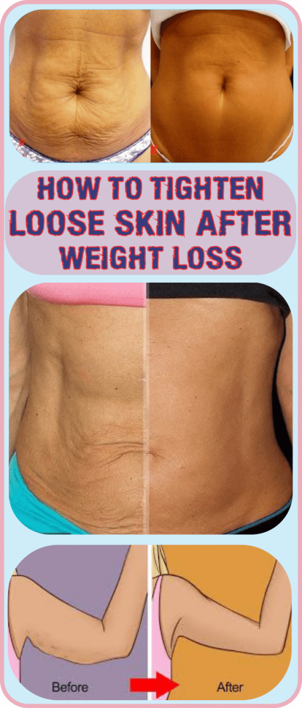 Pin on Skin Tightening After Weight Loss