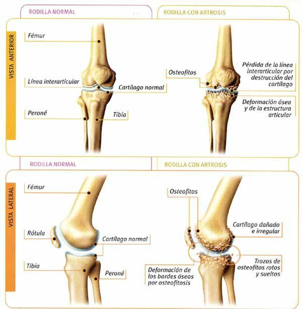 Rodilla con artrosis y osteofitos