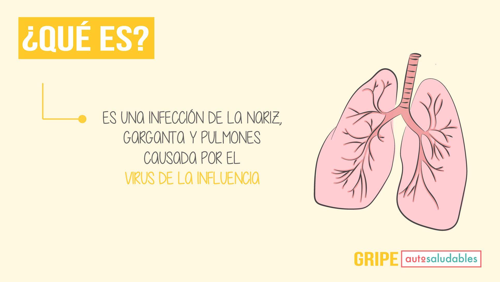 Gripe influenza sintomas y tratamiento