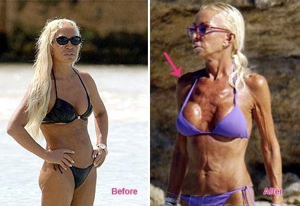 versace implants Donatella breast