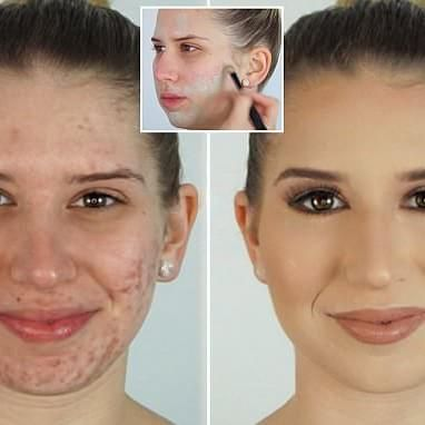 Make Up Artist Covers Acne Using Foundation And Green Concealer Acne Makeup Best Makeup For Acne Green Concealer