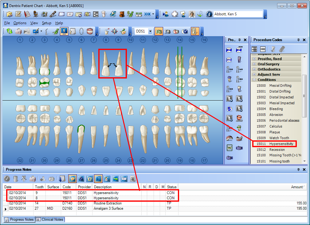 Dentrix Tip Tuesdays Charting Conditions Using Ada Condition Codes With Images Dental Hygiene Student Dental Hygiene School Dental