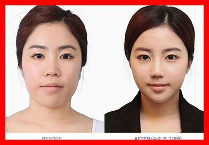 Tried And Tested Skin Care Tips | Skin Whitening Fast
