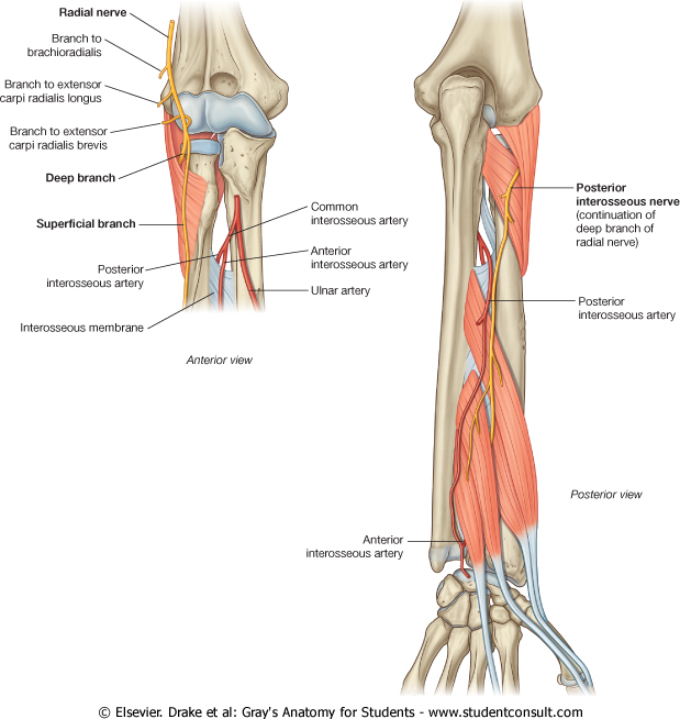 Radial nerve injury in the arm & elbow: patient typically presents ...