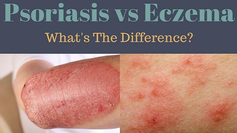 eczema vs psoriasis photos